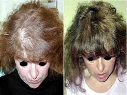 hairstyles for women with alopecia does female androgenetic alopecia really exist or low local