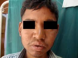 classification and treatment of the saddle nose deformity rhinological evaluation in leprosy