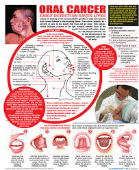 Roof Of Mouth Cancer Images by Oral Cancer Daily Mirror Sri Lanka Latest Breaking News And