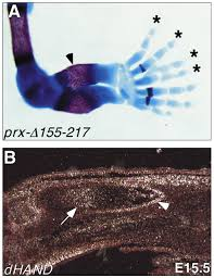 misexpression of dhand induces ectopic digits in the developing