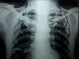 Radiology Of Thorax How To Count Ribs On Chest X Ray In 5 Minutes Youtube