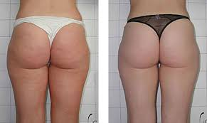 red light therapy cellulite cold laser cellulite treatment laserdermology shino bay cosmetic