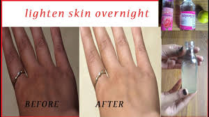 Tips To Take Care Of Skin In Winter How To Lighten Skin Naturally Overnight Moisturized U0026 Glowing