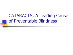 Can Cataracts Cause Blindness Cataracts A Leading Cause Of Preventable Blindness Ppt Video
