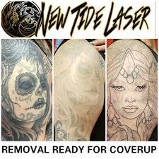 new tide laser u2014 red tide tattoo company