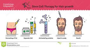 Injection In Scalp For Hair Growth Vector Illustrated Set With Stem Cell Therapy For Hair Growth