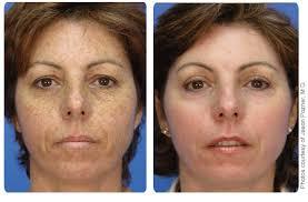 light treatment for skin broadband light bbl for brown spots new york city dr liotta