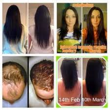 donna hair juice plus can also help with hair growth check out