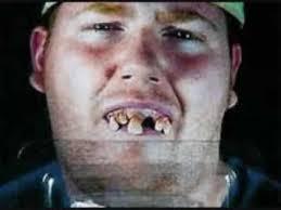 Missing Teeth Meme - list of synonyms and antonyms of the word hillbilly missing teeth