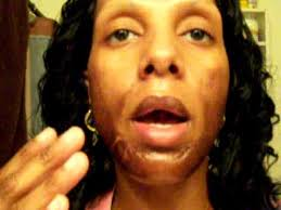 salicylic acid shoo for african american hair jessner s chemical peel 30 with 20 salicylic acid on top day 4