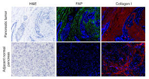 blocking enzyme in normal cells may impede pancreatic cancer penn