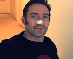 Hugh Jackman Hugh Jackman Treated For Skin Cancer On His Nose For The Fifth