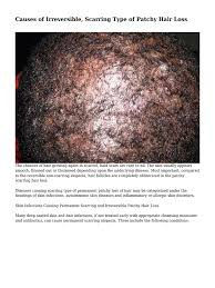Measures To Prevent Hair Loss Causes Of Irreversible Scarring Type Of Patchy Hair Loss Hair