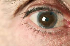 Illnesses That Cause Blindness Glaucoma Why Are So Many Of Us Blind To This Sight Stealing Disease
