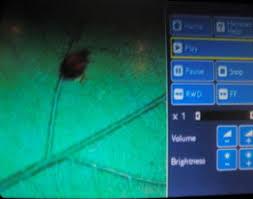 bed bug uv light true horror story i was devoured by bedbugs on a british airways