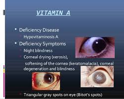 Night Blindness Deficiency Vitamis