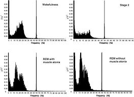 rem sleep behaviour disorder prodromal and mechanistic insights