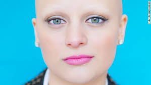 cancer society wigs with hair look for how some women avoid hair loss during chemotherapy cnn