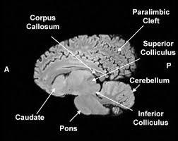 Sagittal Brain Mri Anatomy Sagittal Mri Section Of A Normal White Whale Brain