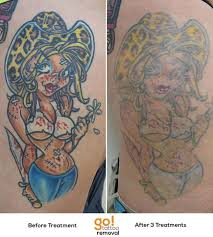 go tattoo removal
