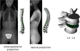 frontiers planning the surgical correction of spinal deformities