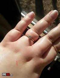 rings finger images How do you get a ring on if you have fat fingers jpg