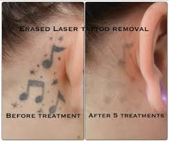 after the 5th treatment erased tattoo removal las vegas www