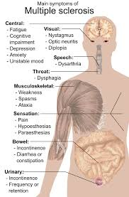 multiple sclerosis signs and symptoms wikipedia