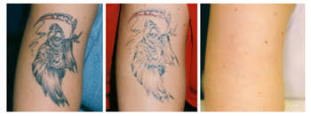 northampton laser clinic tattoo removal