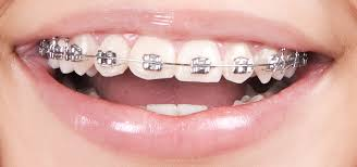 nickel free braces bloomingdale and bartlett braces