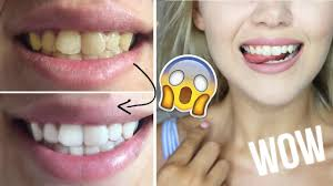 Teeth Whitening Kit With Led Light How To Make Your Yellow Teeth White No Led Light Diy Teeth