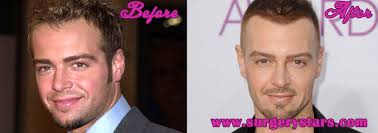 joey lawrence hair surgery before u0026 after pictures