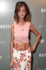 Ugliest Lizzie Velasquez Responds To Unwillingly Becoming Face Of A Body