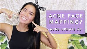 Face Acne Map Acne Face Mapping Finding The True Cause Of My Cystic Acne Acne