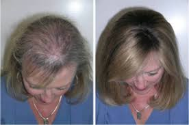 best hairstyle for alopecia pilanol anti hair loss prevents hair thinning and hair loss