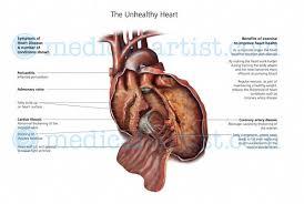 Anatomy Of Heart Valve Anatomical Illustrations Of The Human Heart Heart Anatomy