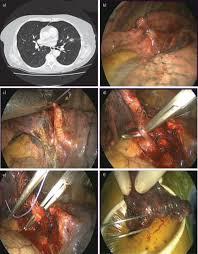 surgery for nonsmall cell lung cancer european respiratory society