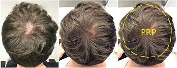 prp for hair loss treatments regrow your own hair 1 in