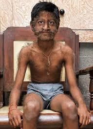 wolf boy pruthviraj patil 11 year suffers hair disorder