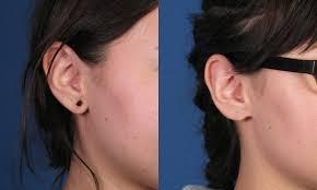spacer earrings torn earlobe repair san diego ca