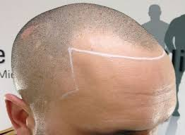 different types of receding hairlines how to prevent a receding hairline regrow hair stop it receding