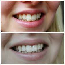 Review Luster Pro White Teeth Whitening System Chyaz