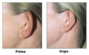 prurito interno orecchie otoplastica procedura risultati e rischi informazioni mediche