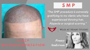 scalp micropigmentation smp u0026 hair loss treatments national