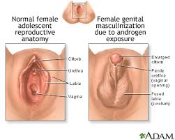 Female Sexual Anatomy Pictures Developmental Disorders Of The Female Tract Scripps Health