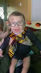 halloween costumes for 2 month old my 6 month old son was born with microphthalmia and has glasses to