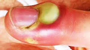 yellow puss filled ingrown hair infected pus filled nails warning drained infection educational