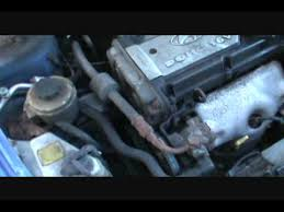 2000 hyundai accent timing belt part 1 changing your timing belt accent 1 6l eng