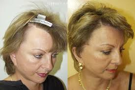 hairstyles that cover face lift scars repair facelift scarring photos hair restoration miami fl