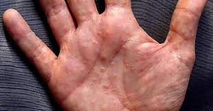 itchy bumps on hands that spread blisters on hands and feet small itchy water blisters